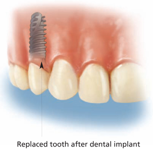 Endosseous Implant