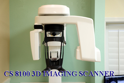 CS 8100 3D Imaging Scanner