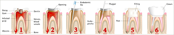 Infected tooth showing root canal therapy
