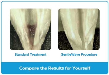 GentleWave Tooth Images
