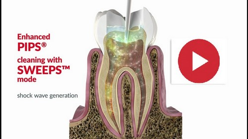 Laser Root canal PIPS SWEEPS  rootcanal biological endodontics integrative holistic dentistry
