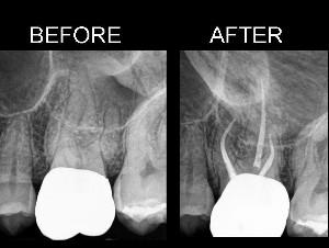 what happens after endodontic treatment