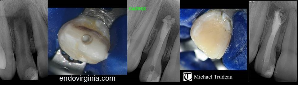 MTA Apexification Endodontics Hampton Roads