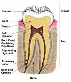 cracked root canal pain