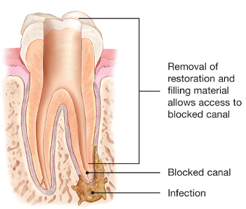 Root canal specialist Endodontist Scarsdale Eastchester Hartsdale White Plains Yonkers Westchester NY