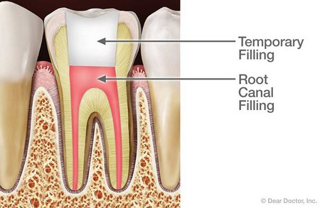 root canal post op instructions